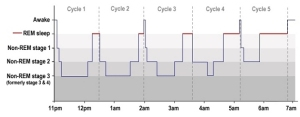 A typical hypnogram showing sleep stages and cycles in adult sleep (image by Luke Mastin). Source: http://www.howsleepworks.com/types_cycles.html